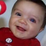 Врожденная глаукома: причины, симптомы и лечение