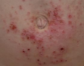 Фото дерматита