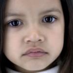 Астигматизм у детей —  лечится или нет?