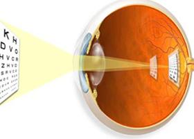 Можно ли восстановить зрение после контузии 3 степени
