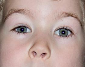 Лазерная коррекция зрения ребенку