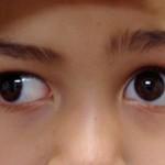 Косоглазие у ребенка — причины и лечение