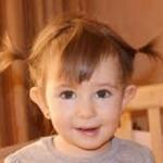 Лопоухость у детей: причины, степени и что делать
