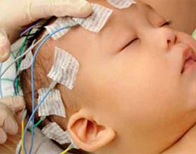Методы лечения перелома головки лучевой кости