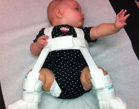 Ортопедическое средство для ребенка