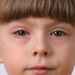 Блефарит у детей — лечение и особенности