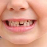 Флюс молочных зубов у детей
