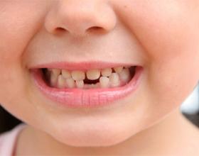 Флюс молочных зубов