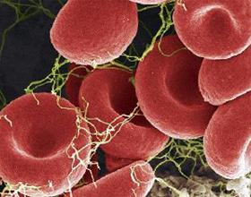 Тромбоциты у грудничка