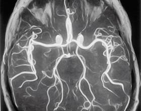 Нейросонография грудничка
