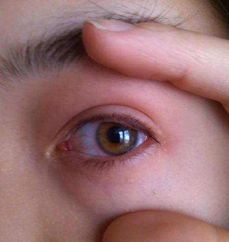 Открытый глаз ребенка