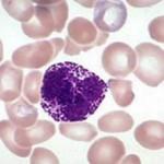 Повышенный уровень базофилов в крови у ребенка: причины и что делать
