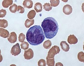 Повышены моноциты в крови у ребенка