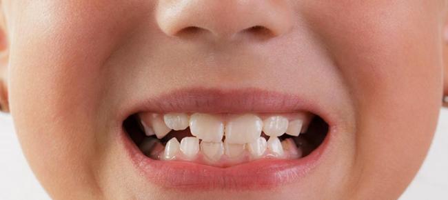 Как ровнять зубы у ребенка