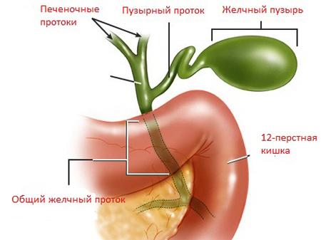 Общий вид болезни
