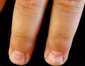 У ребенка слоятся ногти на руках