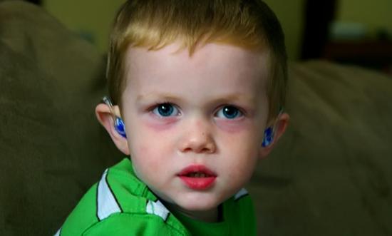 Круги под глазами у ребенка