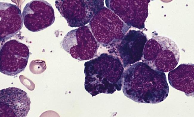 Моноциты в крои
