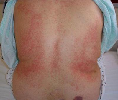 Тромбоцитопения у ребенка