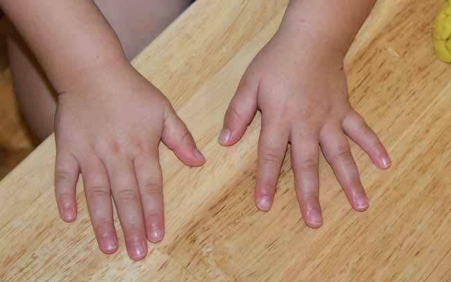 Почему ребенок грызет кожу на пальцах