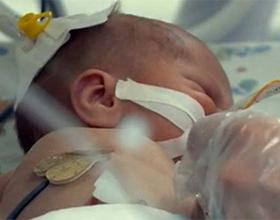 Все об асфиксии новорожденных