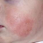 Контактный дерматит у детей: проявления и лечение