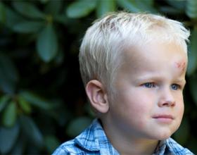 Ушиб головы у ребенка