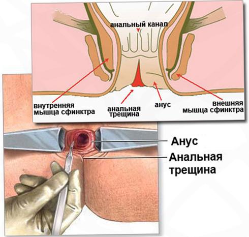 Трещина анального отверстия у младенца