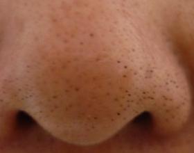 Чёрные точки на лице у грудничка