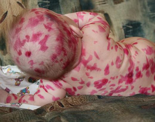 Фукорцин грудному ребенку