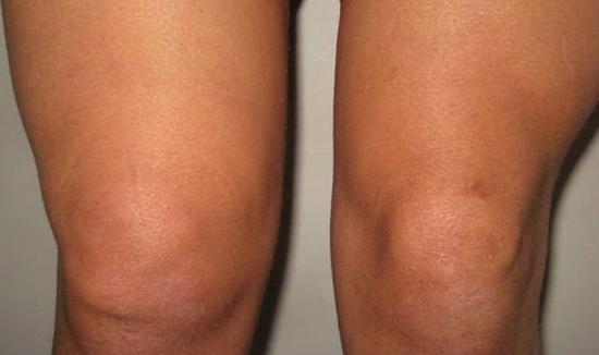 Артрит колен