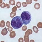 Повышены моноциты в крови у ребенка: причины, что делать