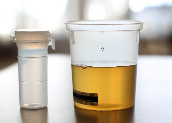 Анализ на белок в моче