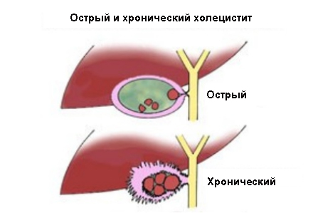 Острый и хронический холецистит