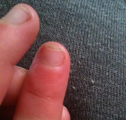 Повреждение пальца