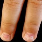 У ребенка слоятся ногти на руках (или ногах): причины и лечение