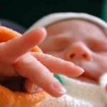 Гемолитическая болезнь новорожденных: формы, симптомы, лечение