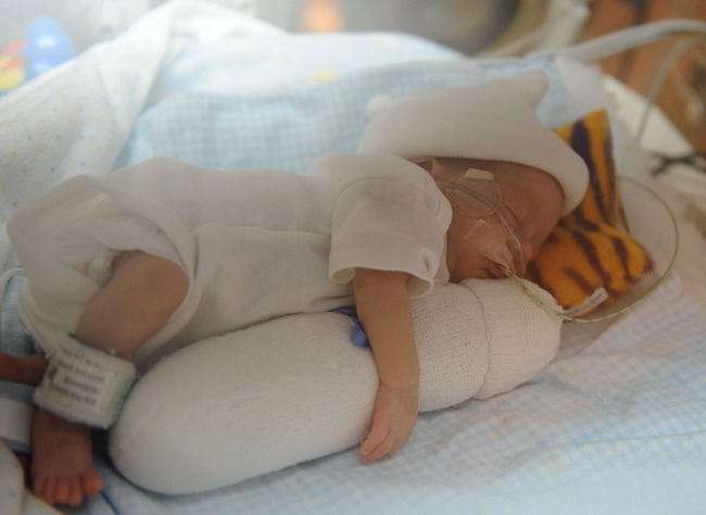 Гипотрофия у малыша