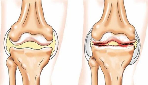 Суть реактивного артрита