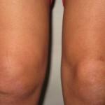 Реактивный артрит суставов у детей: причины, симптомы и лечение