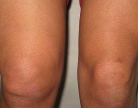 Реактивный артрит суставов у детей