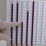 У ребенка повышена СОЭ в крови: причины, норма, лечение