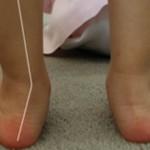 Вальгусная деформация стопы у детей: причины, диагностика, лечение