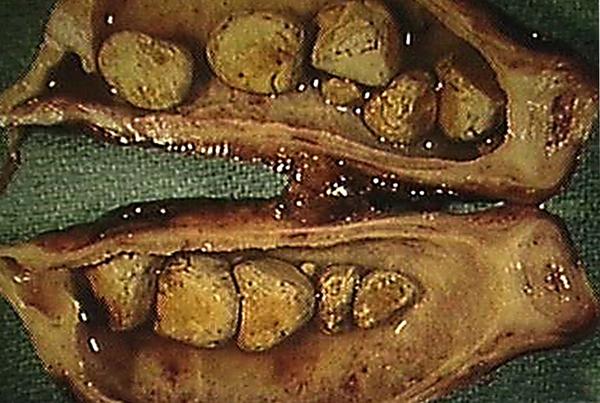 Вид холецистита
