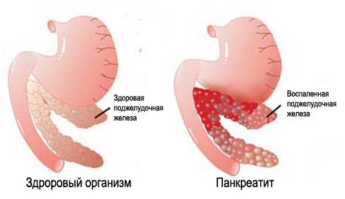 Здоровый организм и пакреатит
