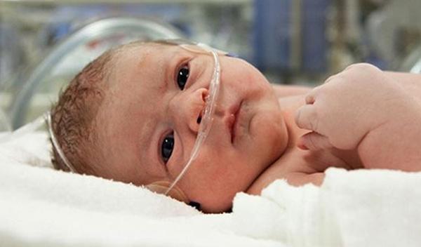 Ребенок с заворотом кишок