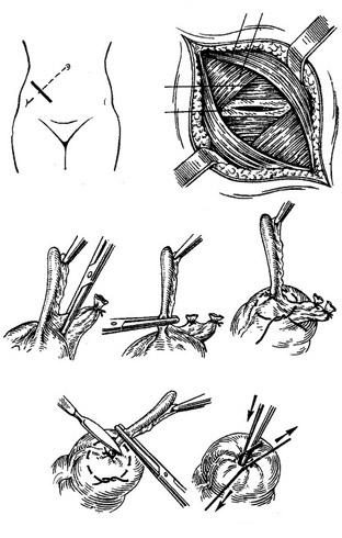 Аппендэктомия
