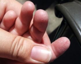 У ребенка облазит кожа на пальцах рук
