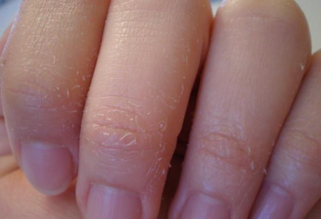 Облазит кожа на руке